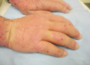 Gloves: Barriers of Infection
